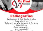 RADIOLOGÍA DENTAL RXDENT DIGITAL